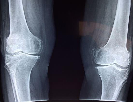 Osteoporosi e Alimentazione: cibo sano per ossa sane!