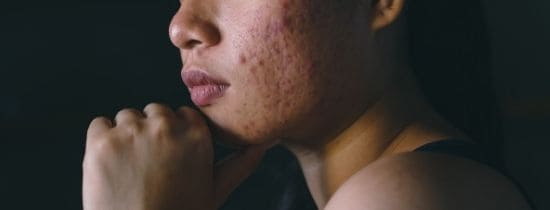Curare l'acne mangiando: come, quando e perché!